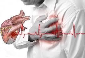 Infarto de miocardío